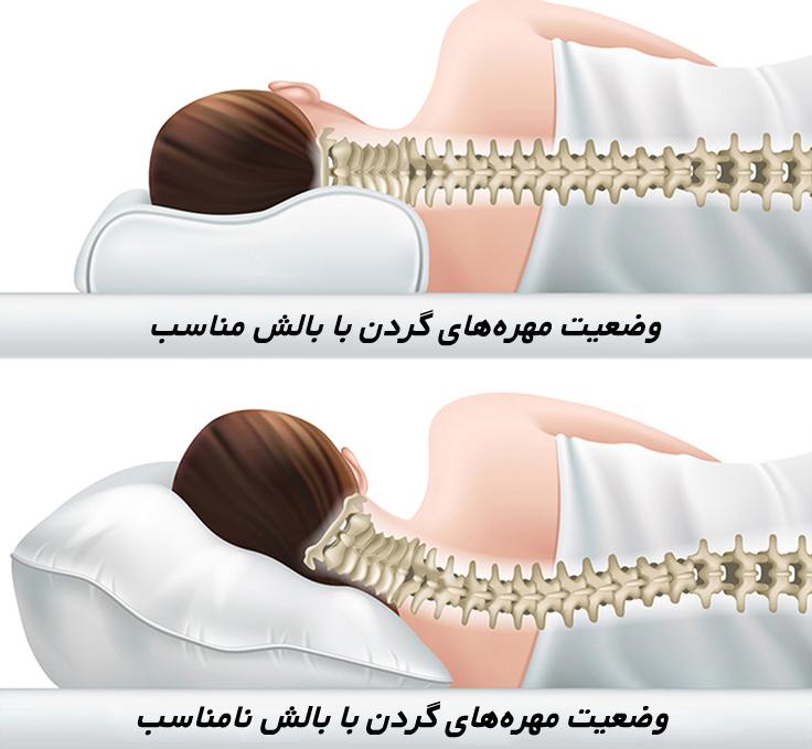 بالش طبی - آرتروز گردن