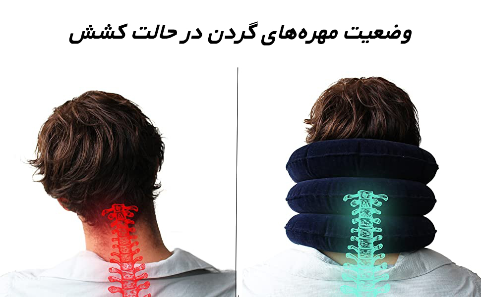 کشش گردن