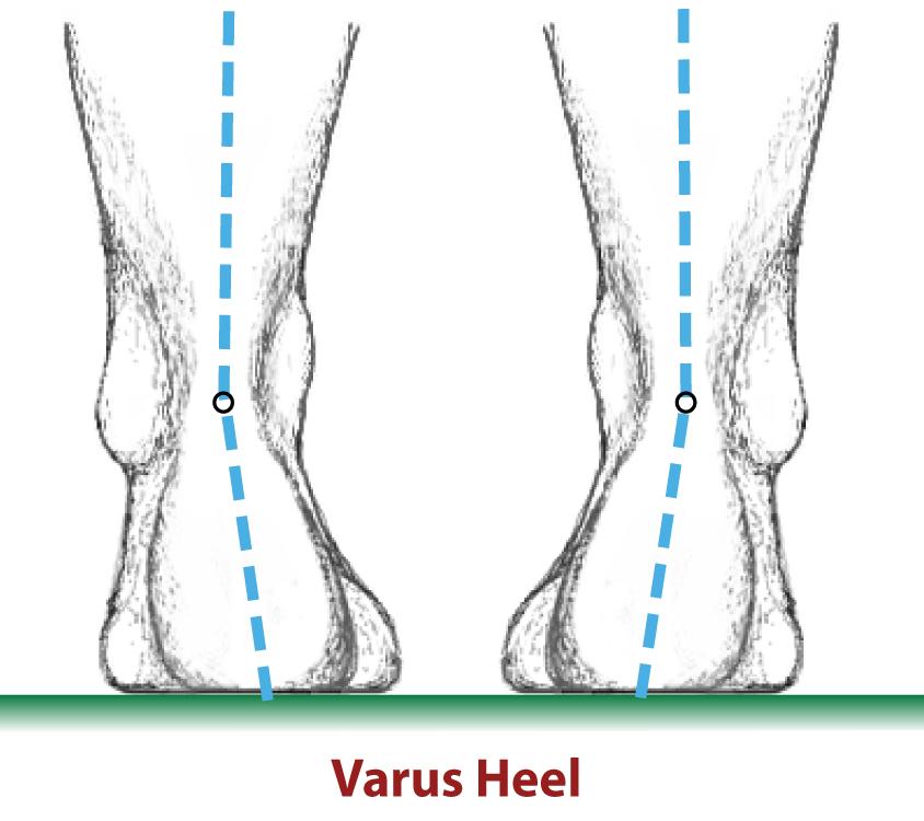 Varus Heel