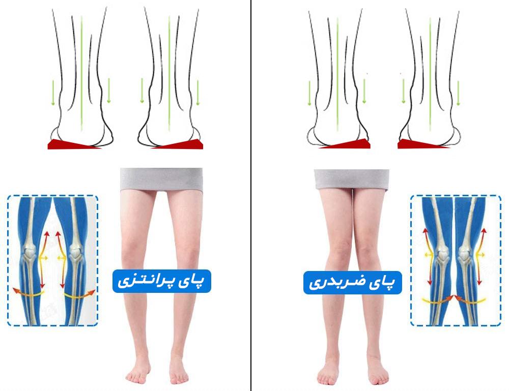 پای پرانتزی - پای ضربدری